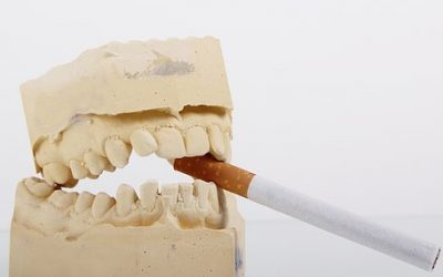 Tabaco y salud dental: ¿son compatibles?