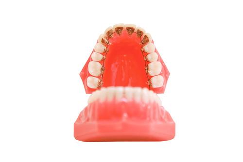 Ortodoncia lingual: Ventajas y limitaciones
